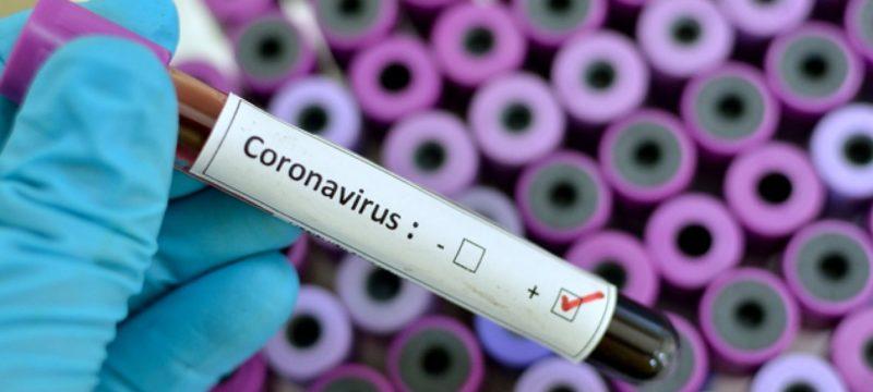 coronavirus0000